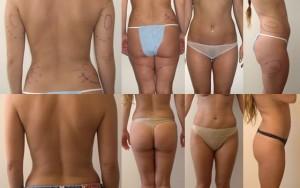 liposuction Santa Monica