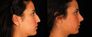 rhinoplasty-patient